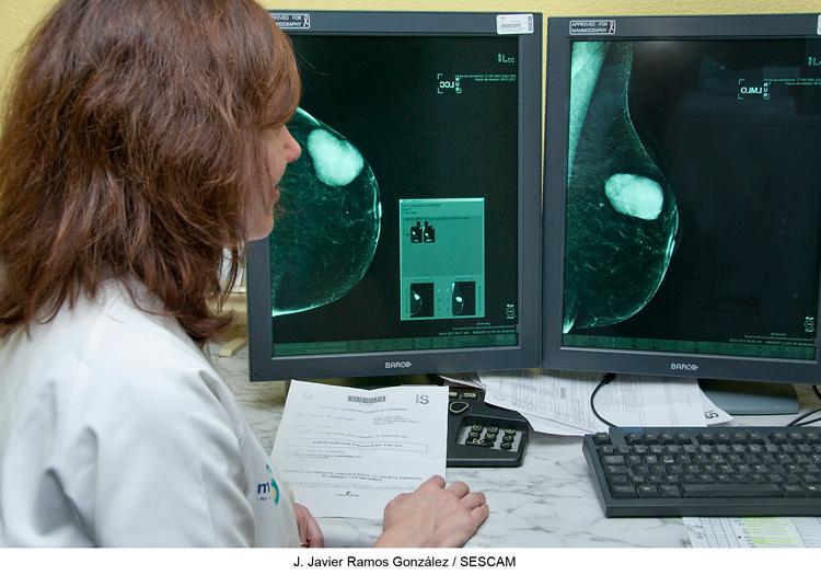 La mamografía es esencial para detectar el Cáncer de Mama